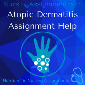 Atopic Dermatitis Assignment Help