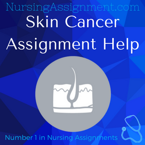 Skin Cancer Assignment Help