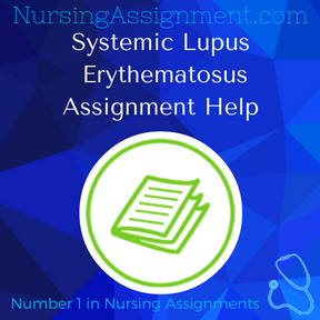 Systemic Lupus Erythematosus Assignment Help